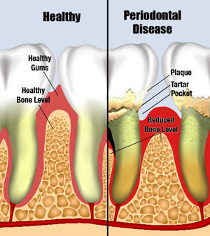 Periodontal-Disease$5B1$5D