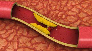 Cholesterol in Arteries