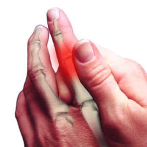 Neuropathy of the fingers
