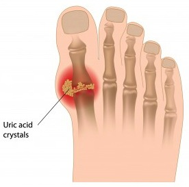 Gout Of Toe Cropped