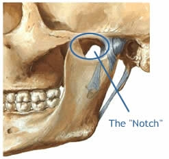 1.33 The Masseter-notch (2)