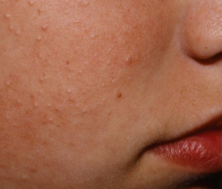 Chicken Skin on Woman's Face