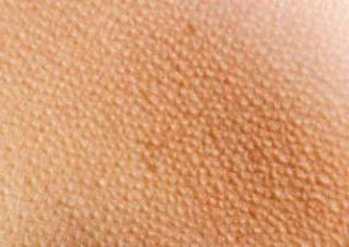 Chicken Skin on arm