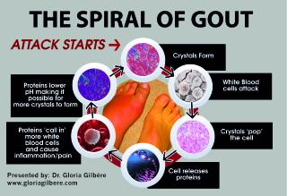 Gloria_GOUT_6steps